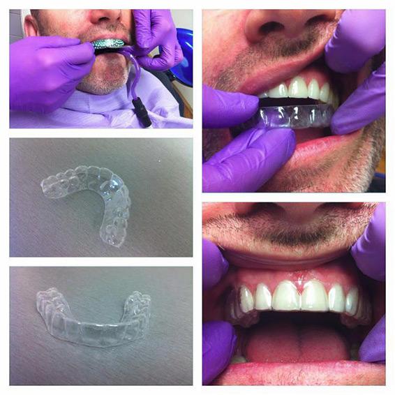 Slika 1. Faze izrade nodne udlage za zube