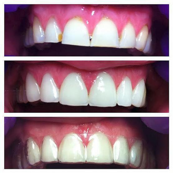 Slika 3. Fotografija situacije prije ljuskica na prednjim gornjim zubima, nakon izrade ljuskica i sa zaštitnom noćnom udlagom za zube