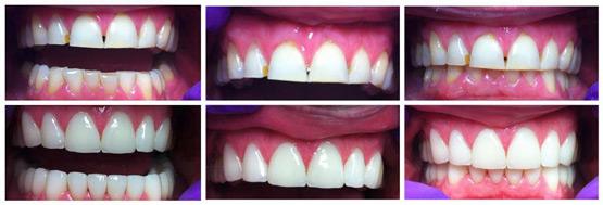 Slika 6. Prikaz slučaja: prije i poslije rekonstrucije krunicama i ljuskicama