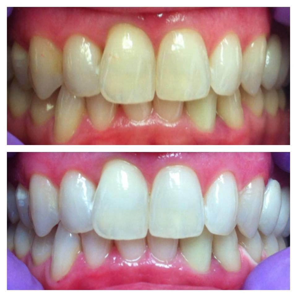 Сиви зуб