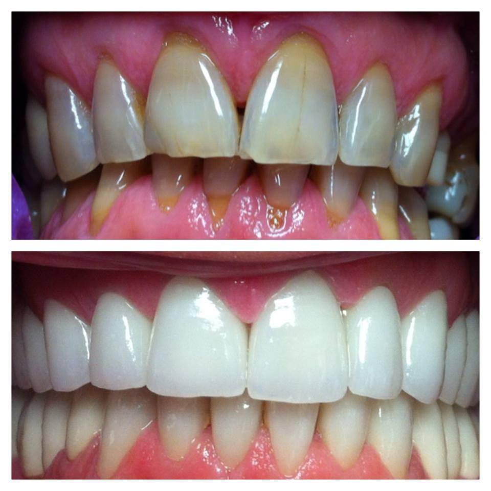 Избјељивање зуба нова цијена сада