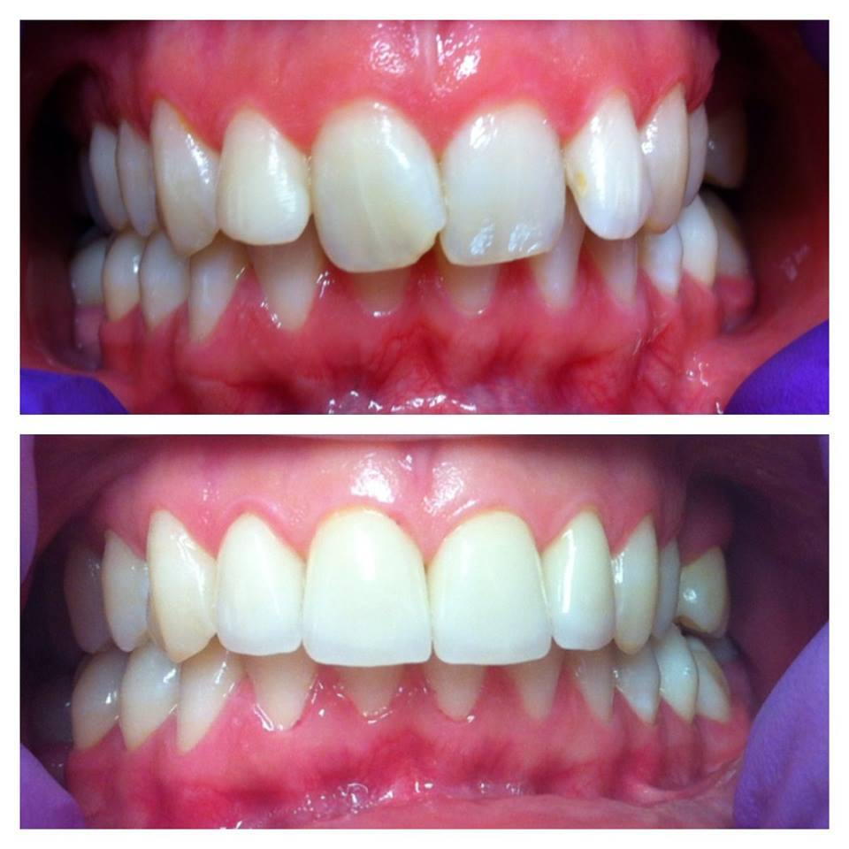 Lasersko lecenje zuba