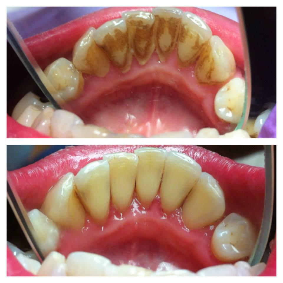 Zubarske ordinacije beograd